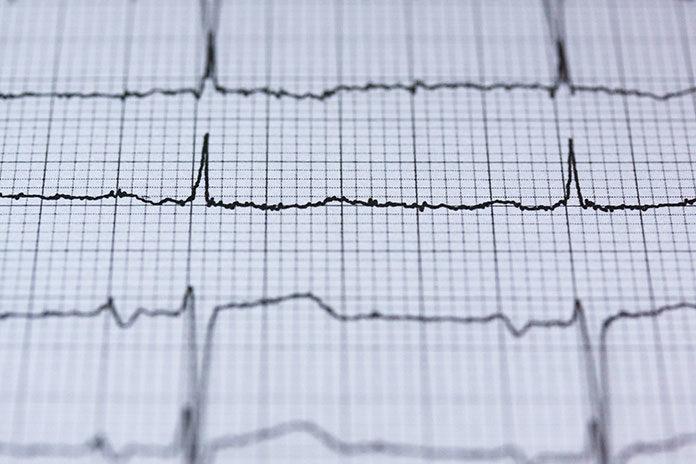 Badania na serce, które warto wykonywać co roku