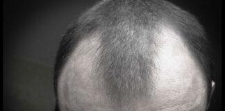 Leczenie łysienia androgenowego